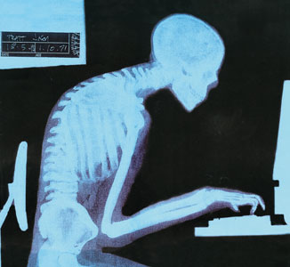 Xray of poor working posture