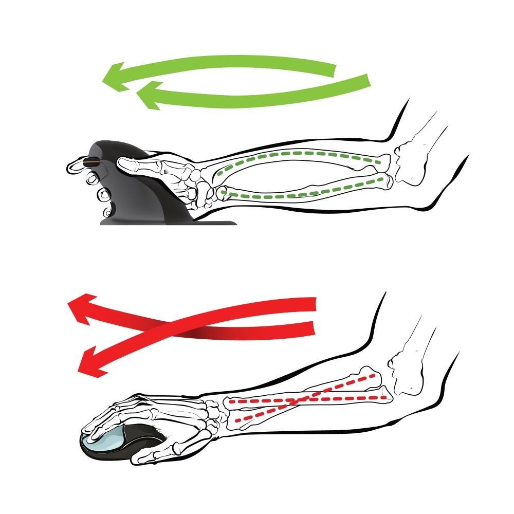 ec426ed9412 ... Penguin Ambidextrous Vertical Mouse vs Standard Mouse ...