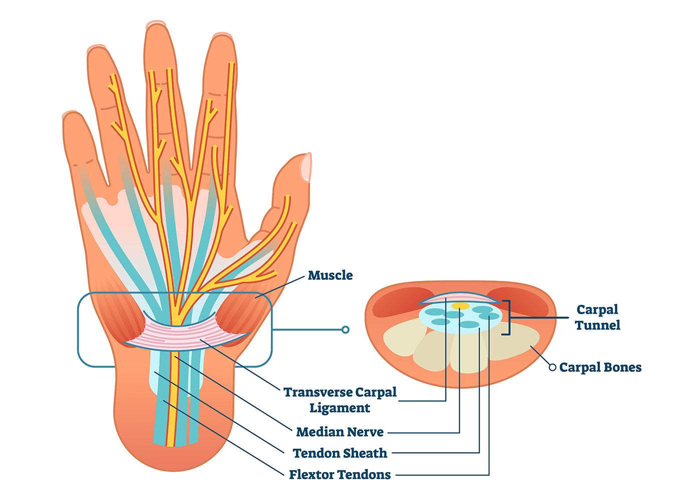 Carpal tunnel explained