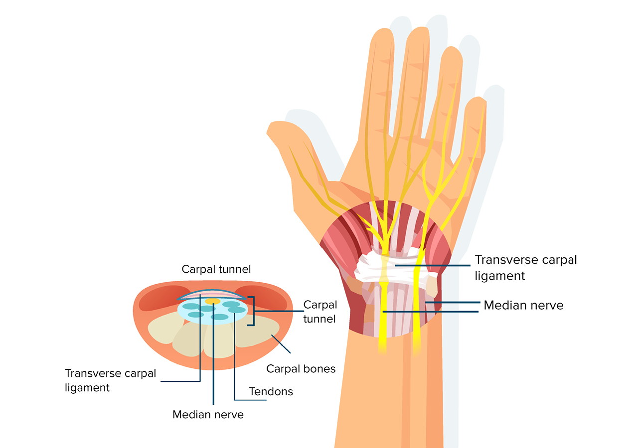 What is the carpal tunnel?
